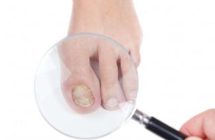 Ciuperca care afecteaza unghiile tratamente